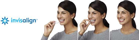 A woman using invisalign